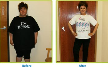 gastric bypass surgery White