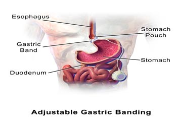 what is bariatric surgery S Burl